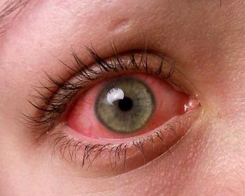 Home Remedies For Conjunctivitis Pink Eye Causes Symptoms