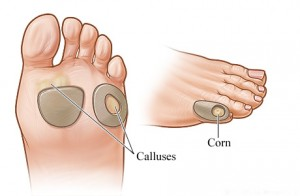 Home Remedies for Corns and Calluses