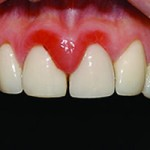 image-of-gingivitis-diagnosis