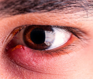 Home Remedies For Eye Styes Content