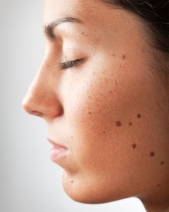 Home Remedies for Moles