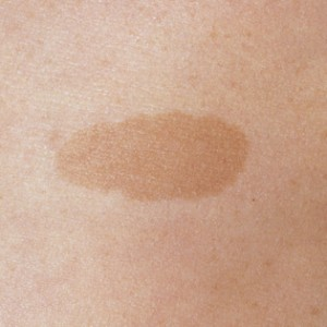 Home Remedies for Brown Spots on Skin