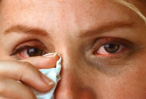 Home Remedies for Itchy Eyes