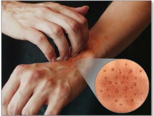 Home Remedies for Eczema Scars