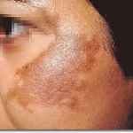 Home Remedies for Hyper pigmentation