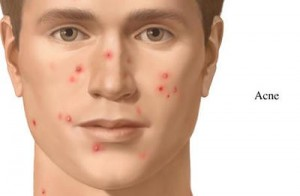 home remedies for acne