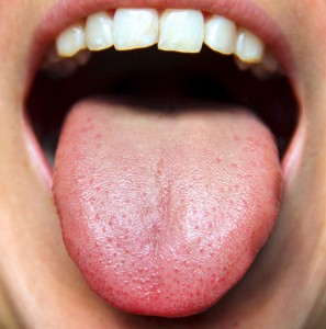 Home Remedies for White Coated Tongue