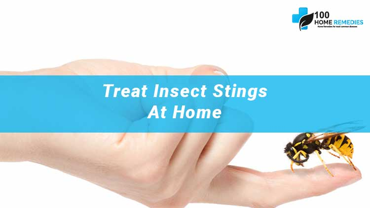 Home Remedies for Stings