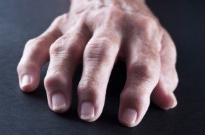 Home Remedies for Arthritis in Hands