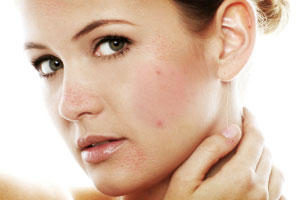 Home Remedies for Black Spots on Face