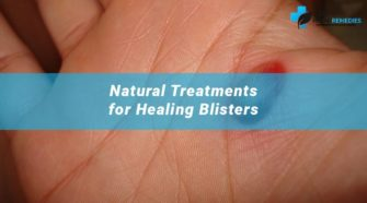 Home Remedies for Blood Blisters