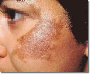 Natural Home Remedies for Hyper-pigmentation