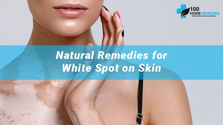 Home Remedies for White Patches on Skin