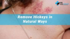 How to Get Rid of a Hickey